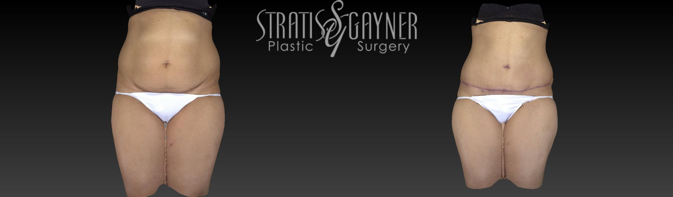 Tummy Tuck Case 196 Before & After View #1 | Harrisburg, PA | Stratis Gayner Plastic Surgery